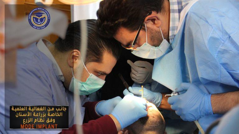 فعالية زراعة الأسنان